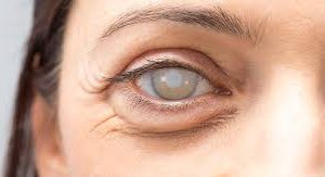 EYE care (Cataract, Glaucoma) price for 4 cups