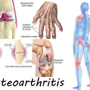 OSTEOARTHRITIS CARE KIT