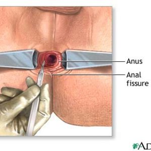 ANAL FISSURE CARE KIT