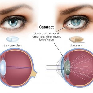 Cataract Solution